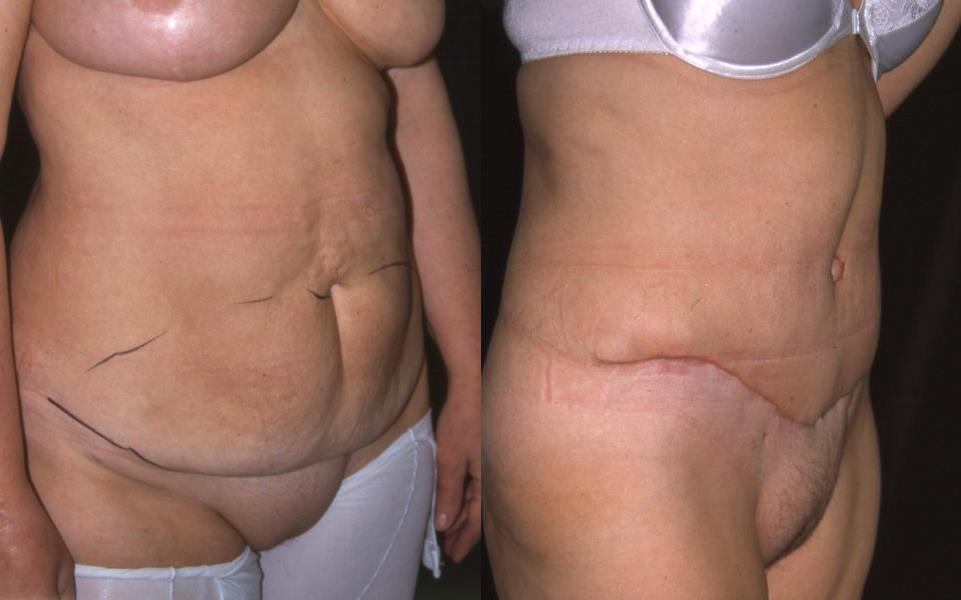 skoliose operation kosten