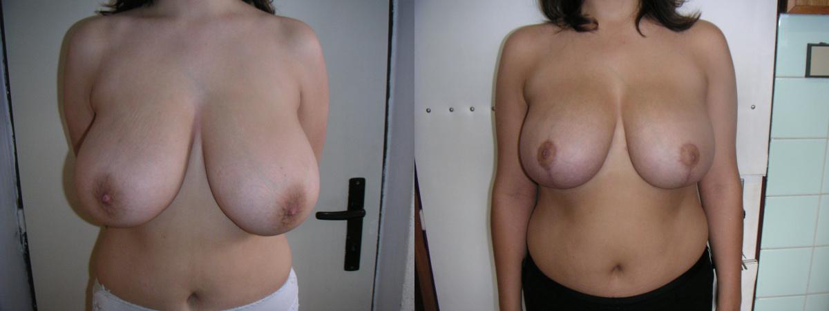 Vorher und nachher Bilder Brustverkleinerung