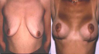 Brustverkleinerung 7 Tage postoperativ