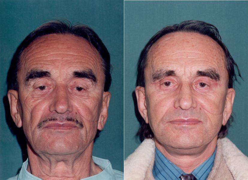Vorher Nachher Bilder Facelifting Mann Ihre Experten Für Facelift
