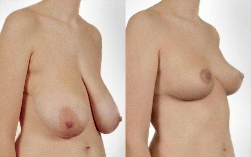 Способы увеличения груди без операции Комплекс упражнений