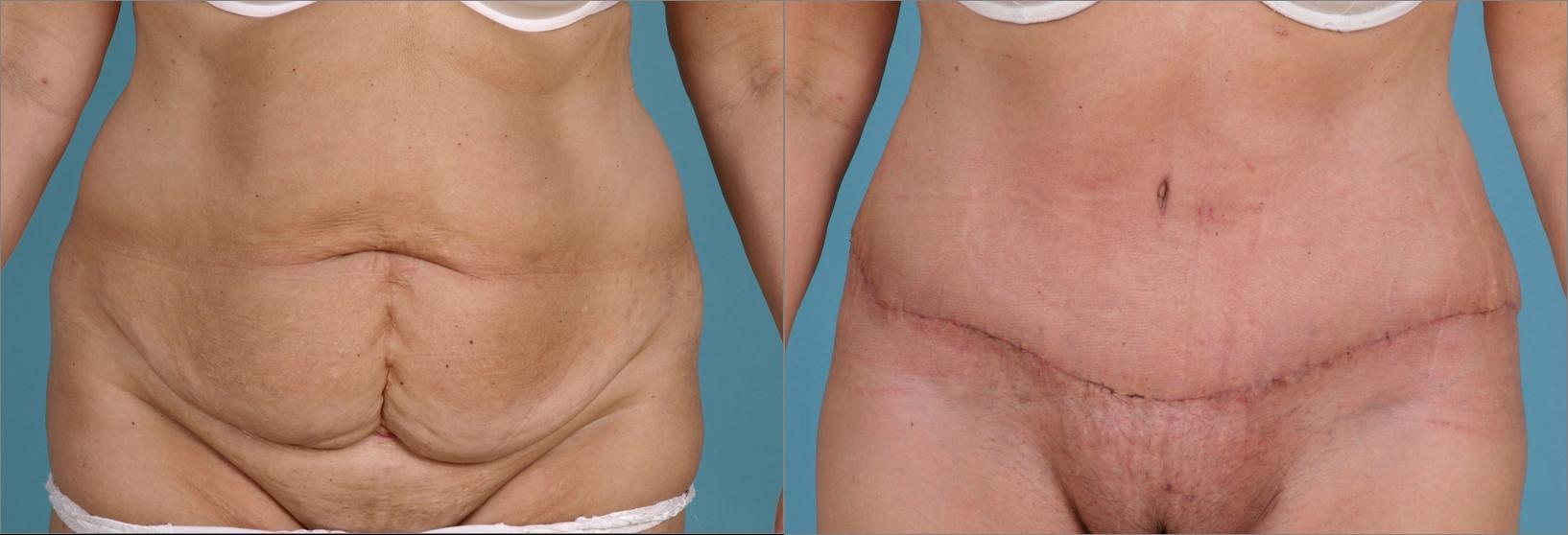 Penisvergrerung in Kln - Plastische Chirurgie Kln