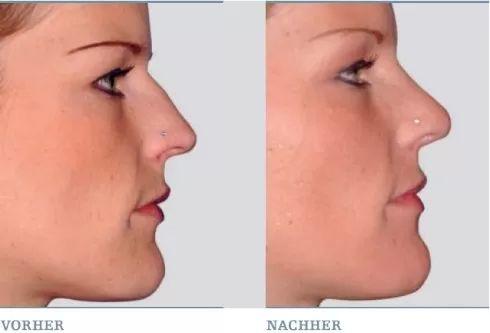 Nase frau breite Breite Nase,